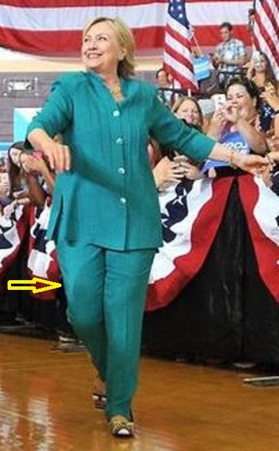 Hillary Clinton catheter